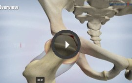 Patient Education - -Jason L. Brannen, MD -  Board Certified Orthopedic Surgeon