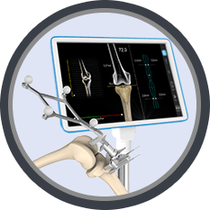 Total Knee Replacement(TKR)